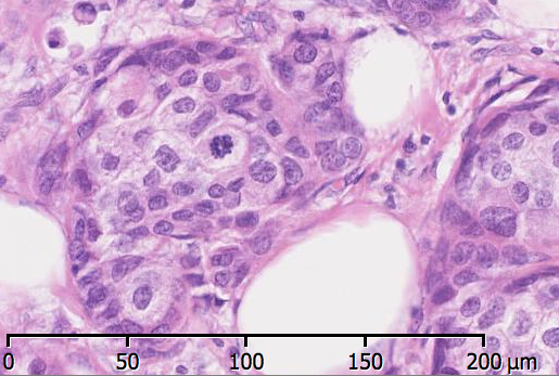 An image shoing mitoses in ductal carcinoma of the breast