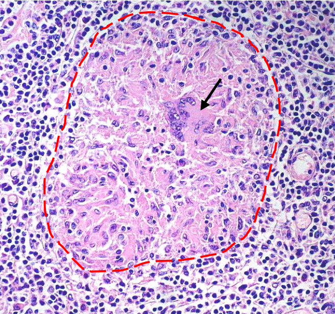 How do histologists diagnose tuberculosis histology blog granuloma ccuart Gallery