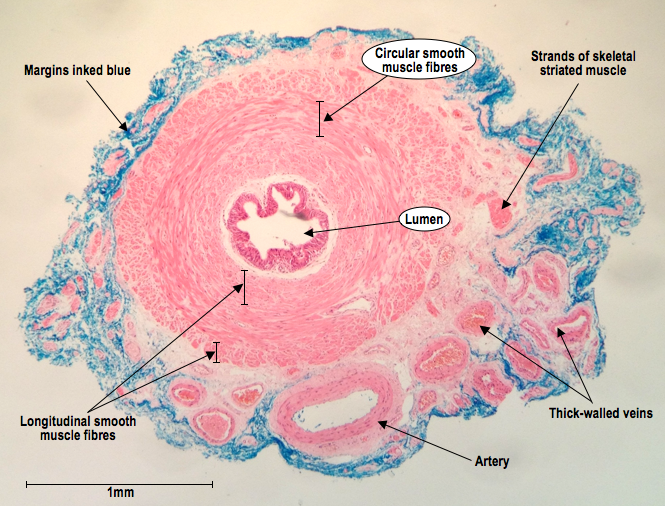 Histoquarterly Vas Deferens Histology Blog