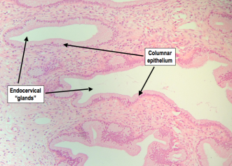 Columnar epithelium