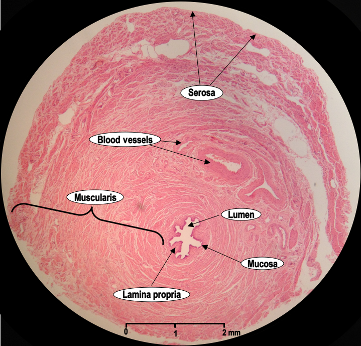 Histoquarterly Fallopian Tube Histology Blog