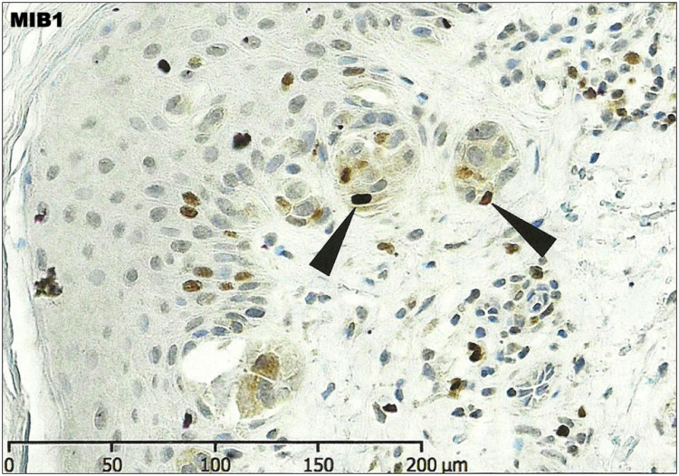 An image showing malignant melanoma stained with a proliferation marker MIB1