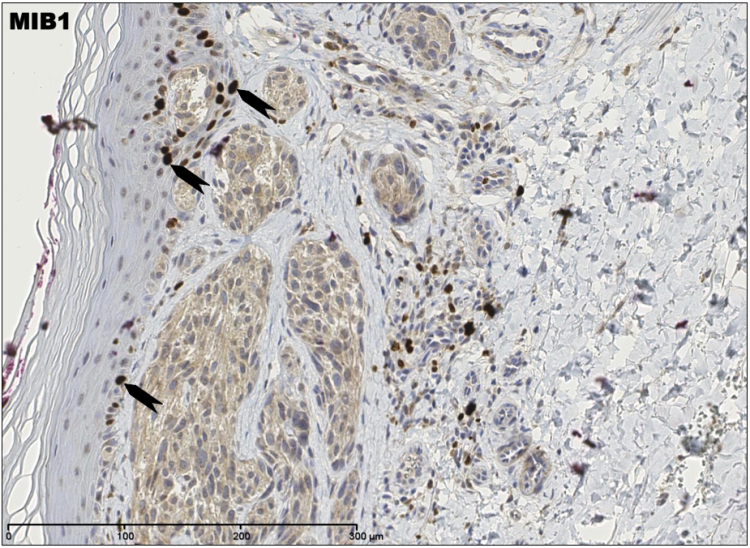 An image showing malignant melanoma stained with a proliferation marker MIB1 Ki67