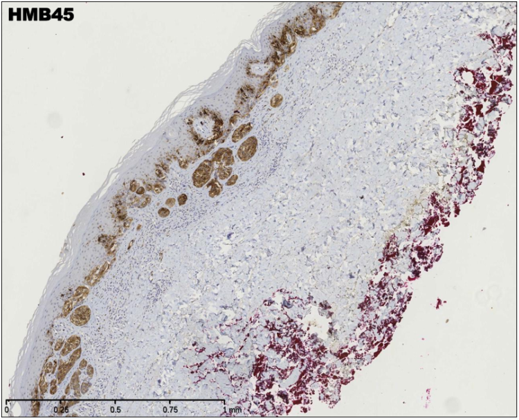 An image showing HMB45 staining in superficial spreading malignant melanoma