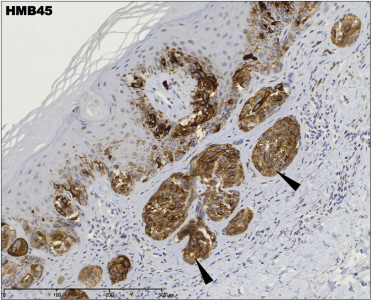 An image showing HMB45 staining in invasive SSMM