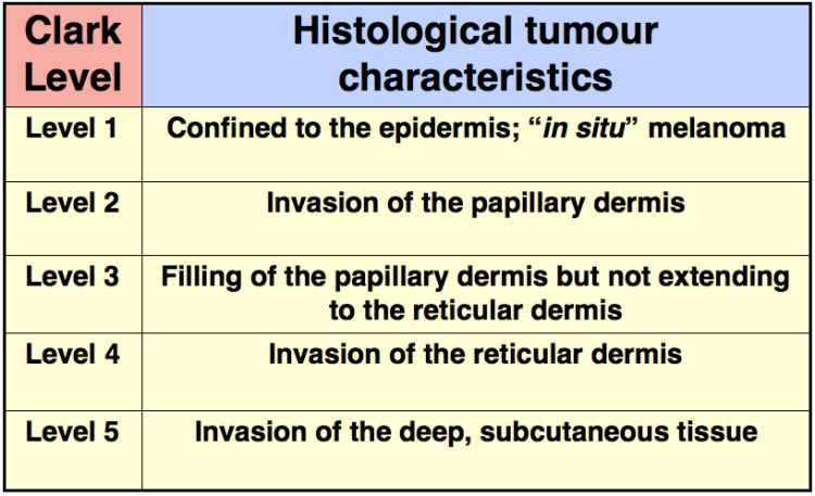 An image showing Clark Level and histological tumour characteristics of malignant melanoma