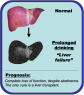 An image comparing a normal liver and complete liver failure