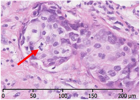 An image showing mitosis in ductal carcinoma of the breast