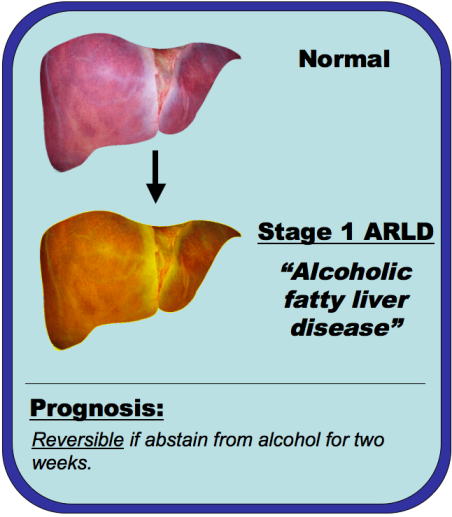 An image comparing a normal liver and alcoholic fatty liver disease