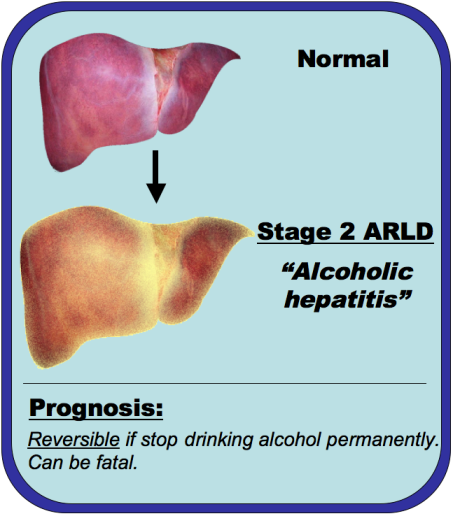An image comparing a normal liver and alcoholic hepatitis