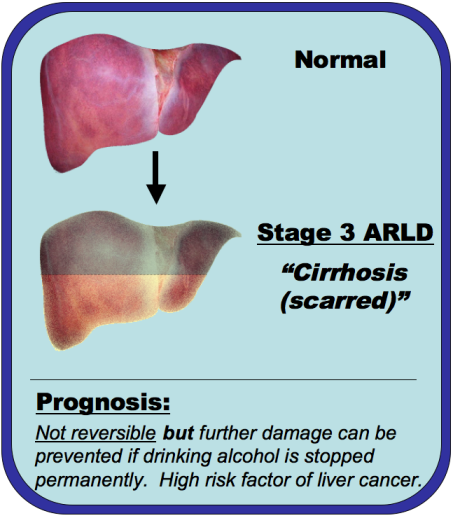 An image comparing a normal liver and a cirrhotic liver