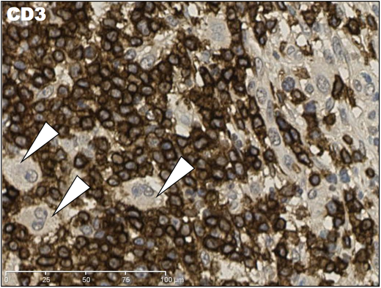 "High magnification IHC CD3 showing that hugging ""rosette"" pattern of T-cells around the large irregular cells."
