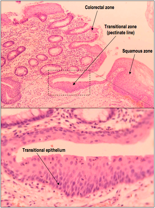 Upper: A low power H&E demonstrating the pectinate line, which is identified by the junction between the colorectal and squamous zones.