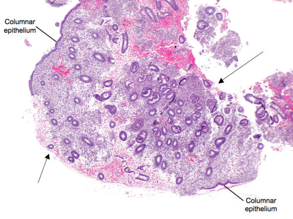 A fragment of endometrium.