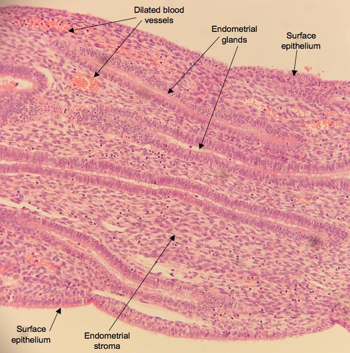 endometrium lining-#46