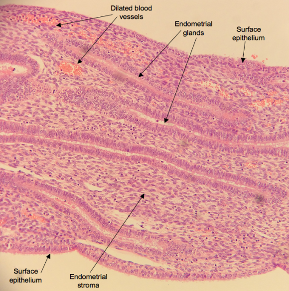A low power H&E of a portion of endometrial polyp