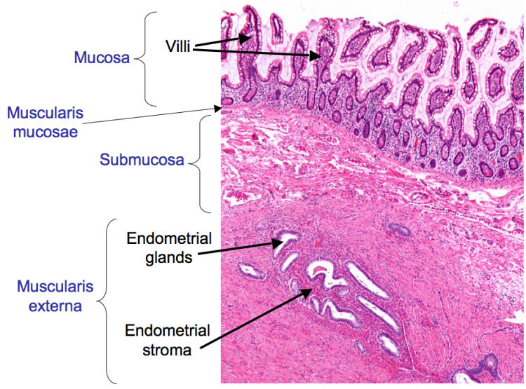 A low power H&E showing endometriosis in the duodenum