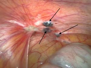 Ectopic endometrial adhesions.