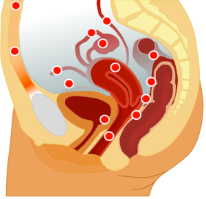 A cross-section of the female body: the red dots show areas of reported ectopic endometrial adhesions