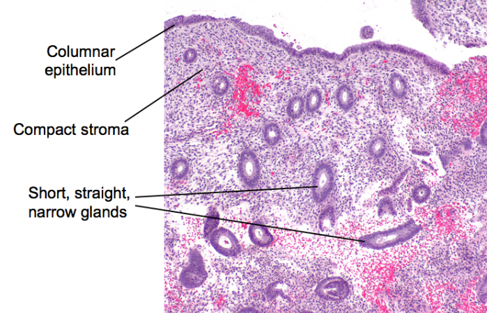Proliferative endometrium_m2t