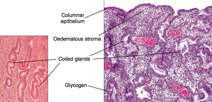 Secretory endometrium_m2t