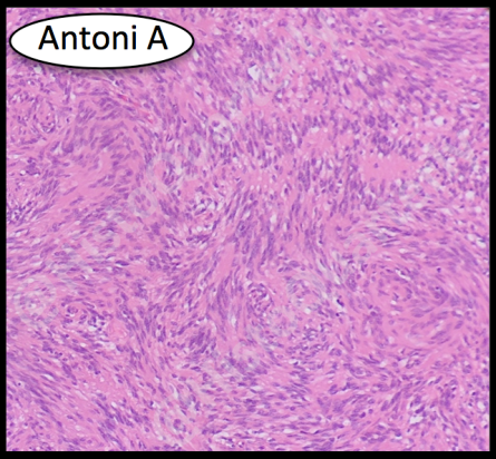 Schwannoma, H&E, Antoni A, Histology
