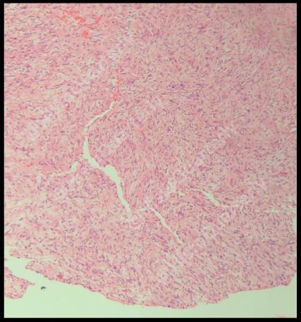 H&E, Histology, Schwannoma, Cellular schwannoma