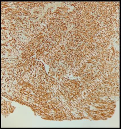Schwannoma, histology, S-100
