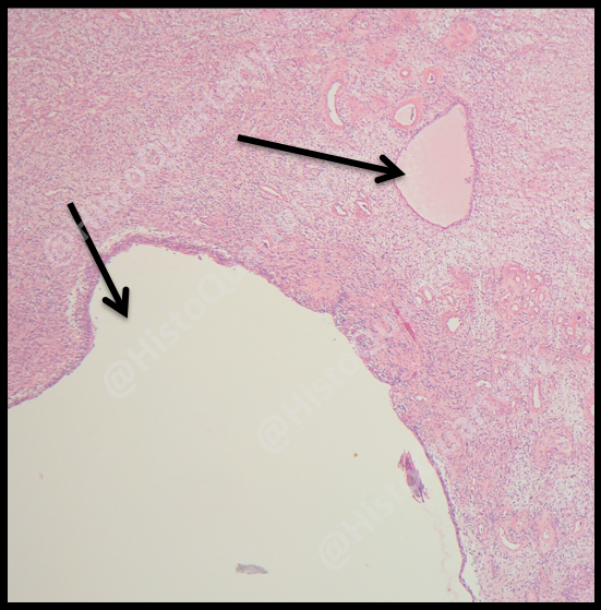 H&E, Schwannoma, histology, cysts