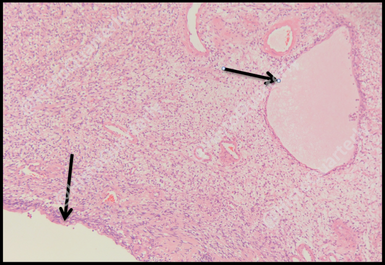 Schwannoma, Histology, H&E, cysts
