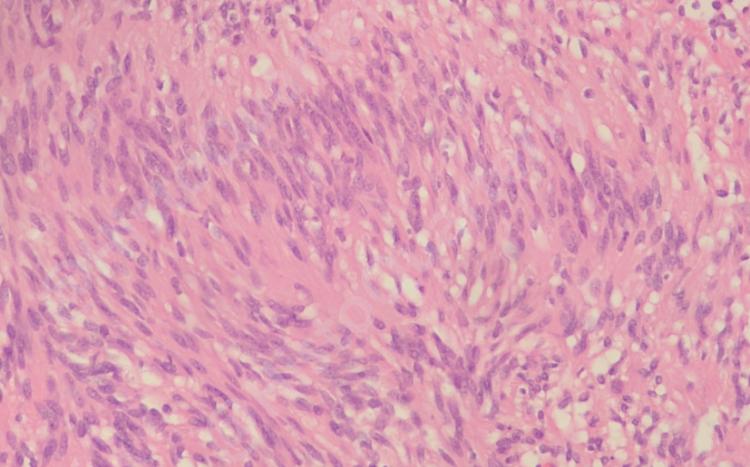Schwannoma, H&E, histology, palisading nuclei