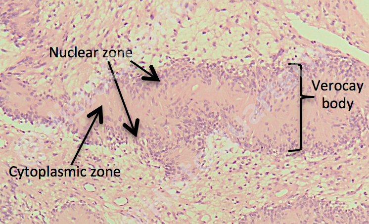 Verocay body, schwannoma, histology, H&E