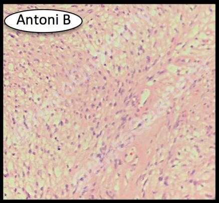 Schwannoma, histology, H&E, Antoni B